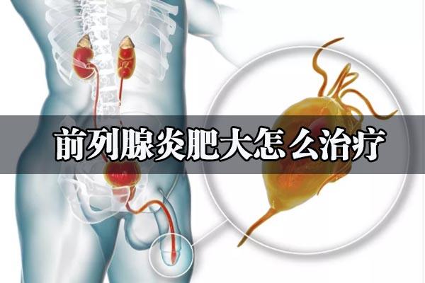 患上前列腺肥大要怎样治疗好