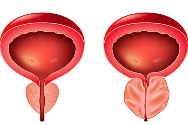 怎么判断自己前列腺炎配图2