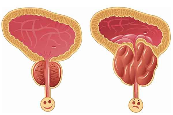 前列腺增生会不会转变为前列腺癌