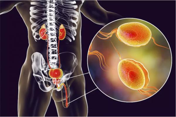 前列腺炎会导致不育吗