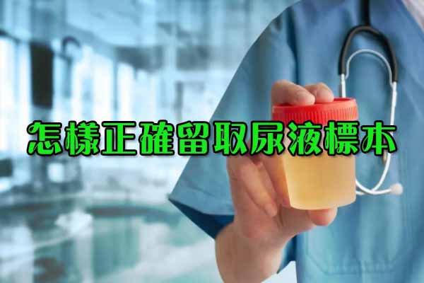 怎样正确留取尿液标本