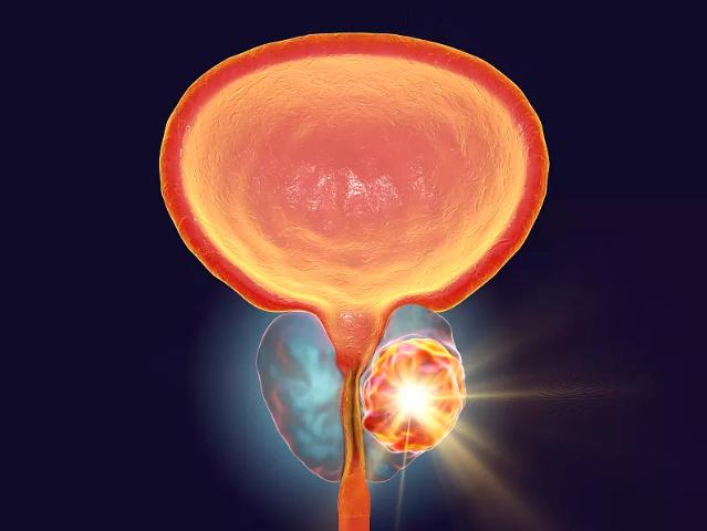 前列腺大小范围区间