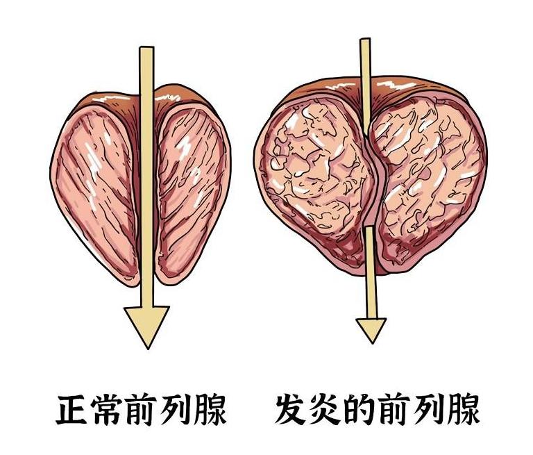前列腺的重要性