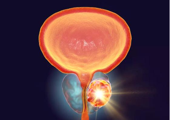 前列腺增生导致体积增大治疗