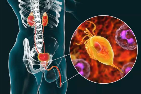 前列腺炎导致的体积增大治疗