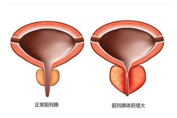 年轻人前列腺增大是什么原因引起的