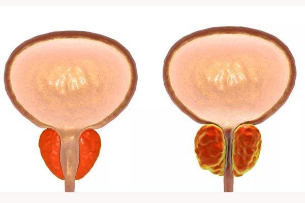 前列腺增大是什么意思